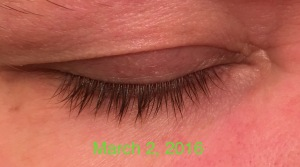 Eyelashes after using Revitalash Advanced eyelash conditioner 0998